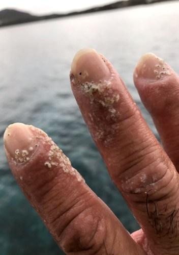 ハナブサイソギンチャクの刺傷